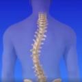 Esta nova técnica de cirurgia na coluna é impressionante!